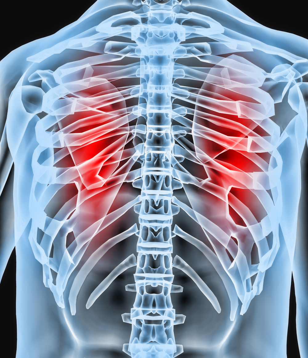 Partnering In Respiratory Boehringer Ingelheim